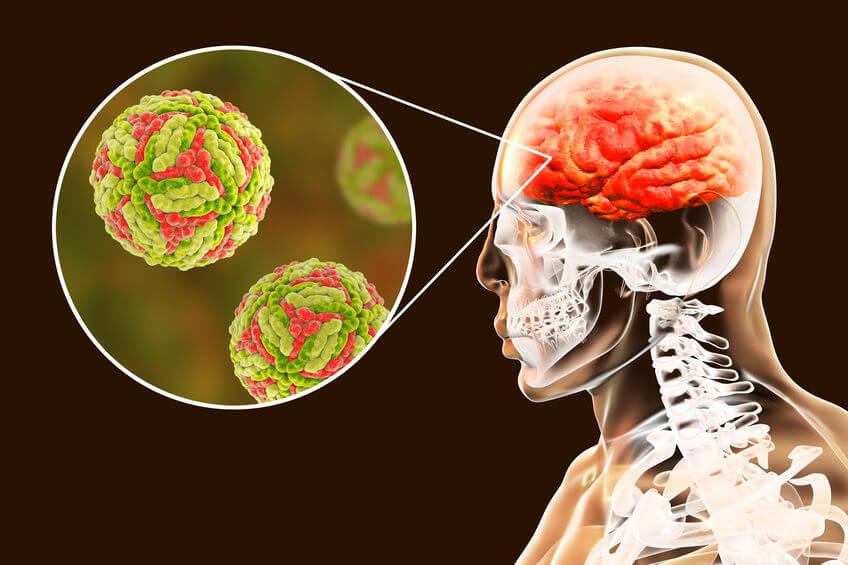 פגיעות מוחיות עקב זיהומים ומחלות